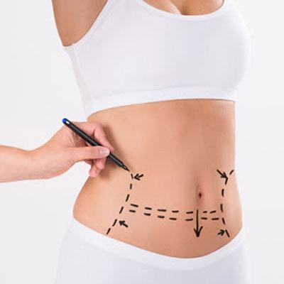 Liposucció amb VASER o Liposucció d'alta definició