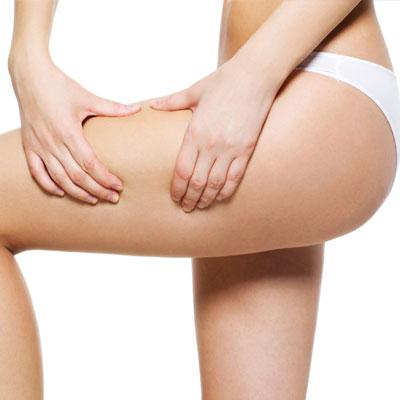 Liposucció de cames