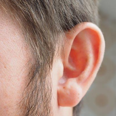 Operació d'orelles