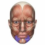 Paràlisis facial